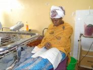 Ethiopian mother appears for exam 30 minutes after giving birth.