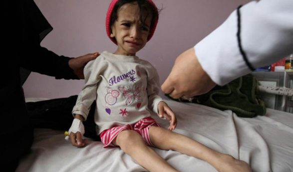 UNICEF: Yemeni children face malnourishment amid aid shortage, coronavirus