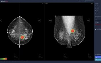 Recent Studies Reveal High Performance of Lunit AI in Breast Cancer Detection