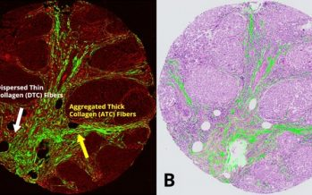 HistoIndex Explores the Clinical Utility of Stain-free AI Digital Pathology Platform in 388 Patients with Triple-Negative Breast Cancer (TNBC)