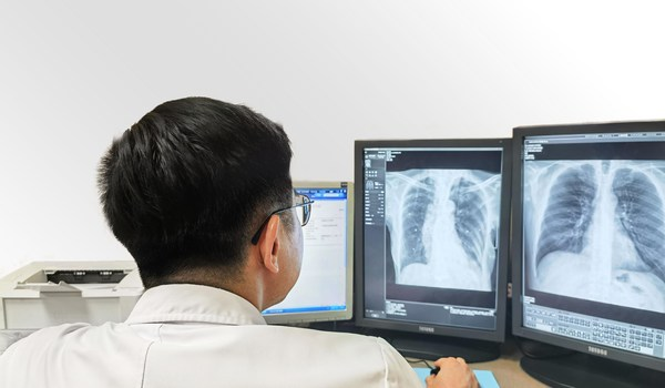 A doctor reading CXR scans using SenseCare-Chest DR Pro diagnostic software