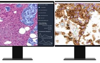 AI-based Analysis of Cancer Tissue Predicts Response to Immunotherapy–Findings to Be Presented at ASCO 2021