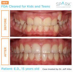 Spark for Kids & Teens II