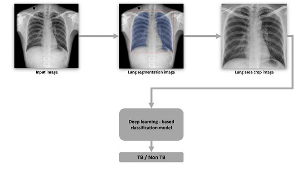 Tuberculosis Classification Approach