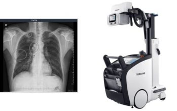 VUNO Inks Deal with Samsung Electronics to Embed AI-powered Algorithms in Samsung's Premium Mobile X-ray System