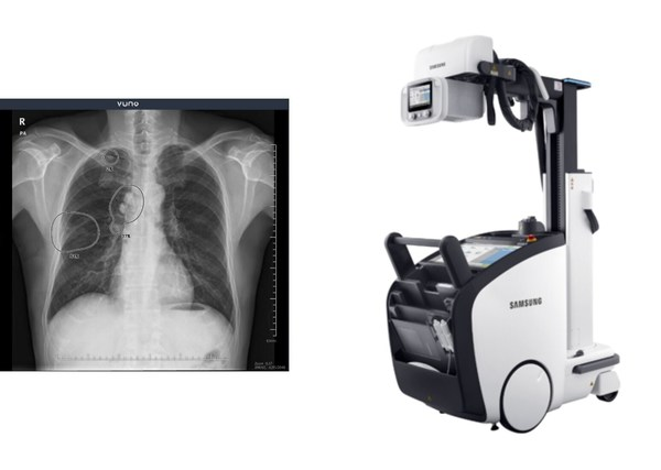 VUNO Med®-Chest X-ray™ & GM85
