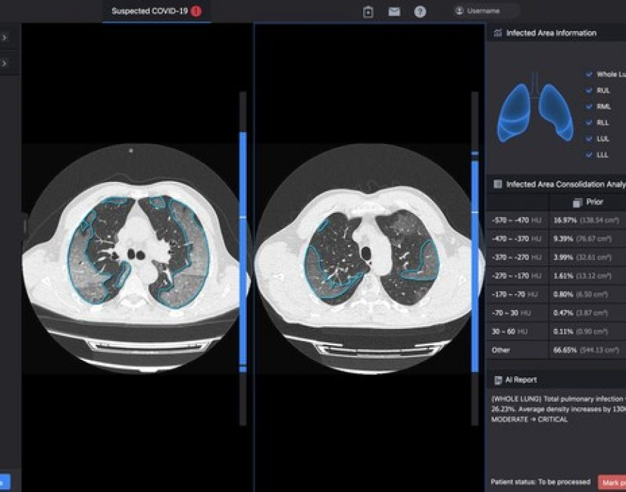 InferVision AI Assists the European Commission Monitoring COVID-19 Variants