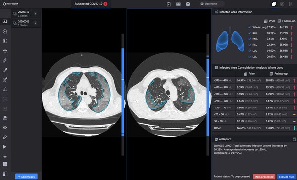 InferRead CT Pneumonia(TM) compares the progress of infection and quantifies changes over time