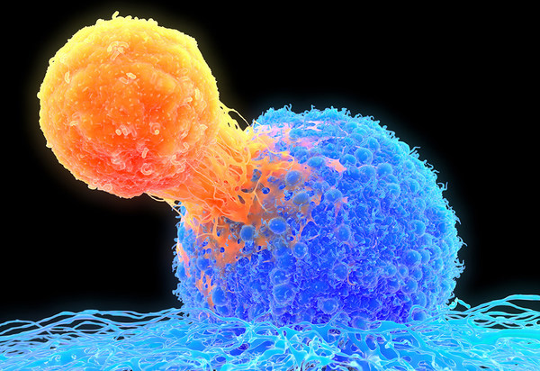 T-cell attaching to cancer cell, illustration T lymphocyte (orange) attached to a cancer cell (blue), illustration. T lymphocytes are a type of white blood cell which matures in the thymus. Certain kinds of T lymphocytes can recognise specific sites (antigens) on the surface of cancer cells or pathogens and bind to them. They can then destroy the cancer cells, or signal for other immune system cells to eliminate them. The genetic changes that cause a cell to become cancerous lead to the present