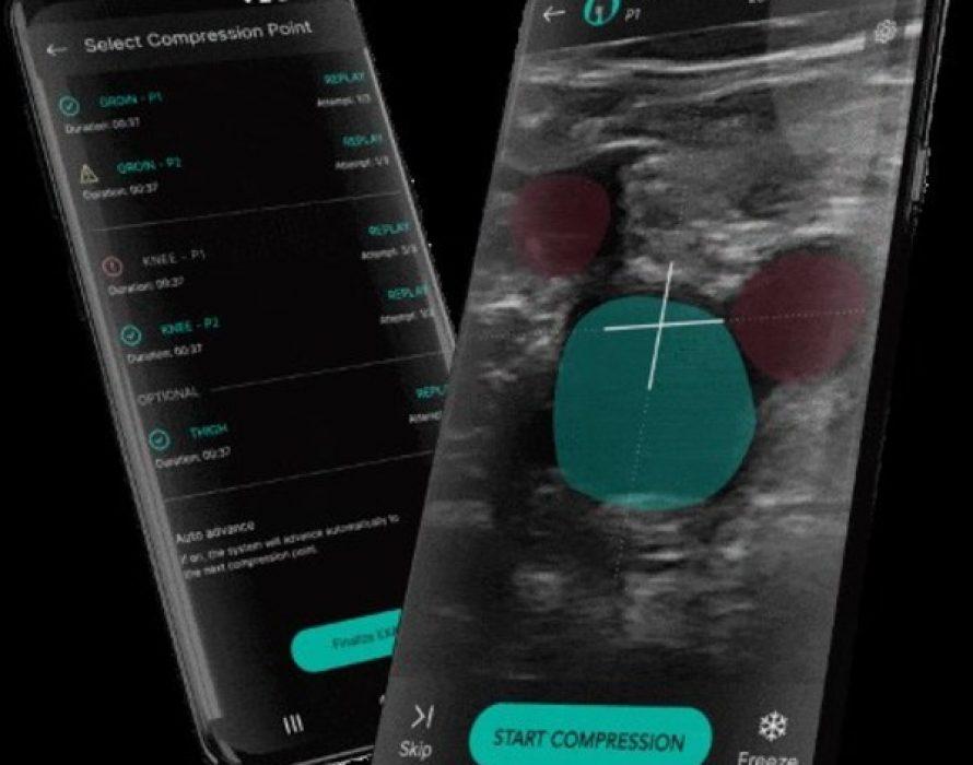 ThinkSono DVT detection software results are published in Nature digital medicine (npj)