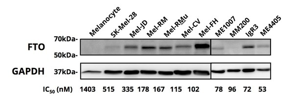 Figure 2. FTO protein expression determined by western blot.